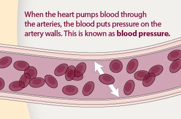 فشار خون به دیواره های عروق